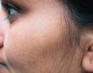medycyna estetyczna - zabieg epilacji włosów