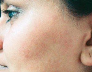 medycyna estetyczna - epilacja włosów po zabiegu